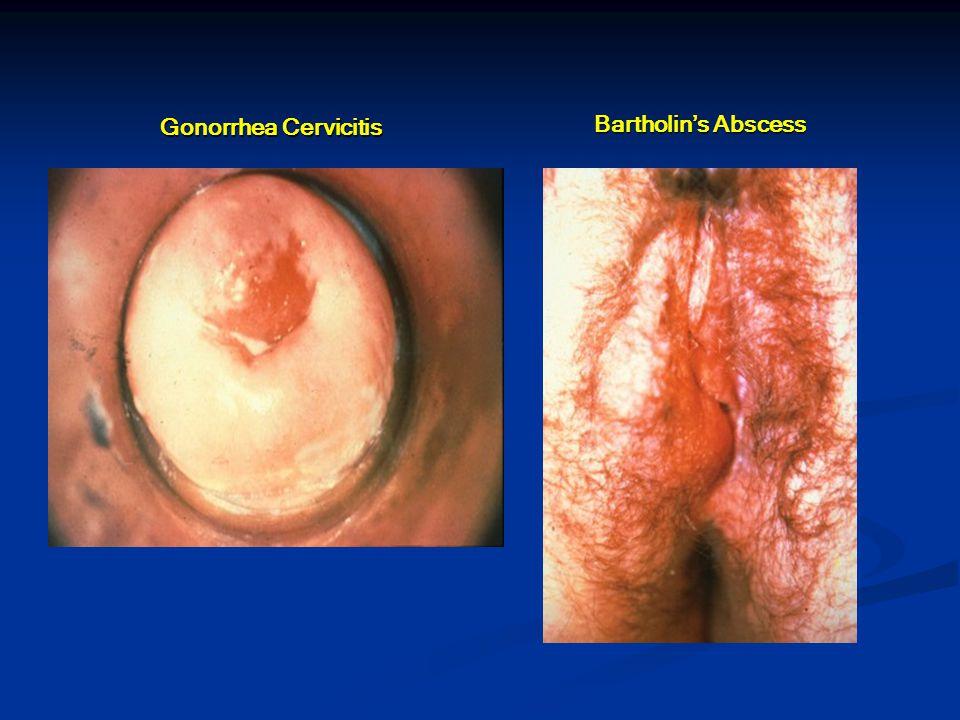 Gonorrhea Cervicitis Bartholin's Abscess