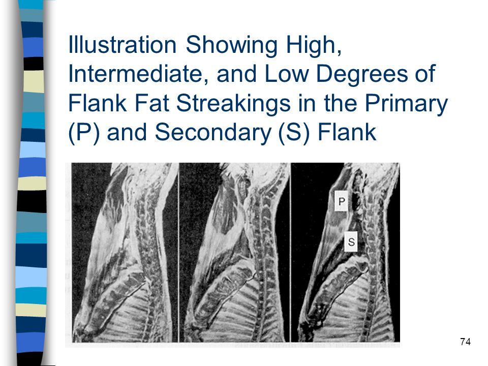 Illustration Showing High, Intermediate, and Low Degrees of Flank Fat Streakings in the Primary (P) and Secondary (S) Flank