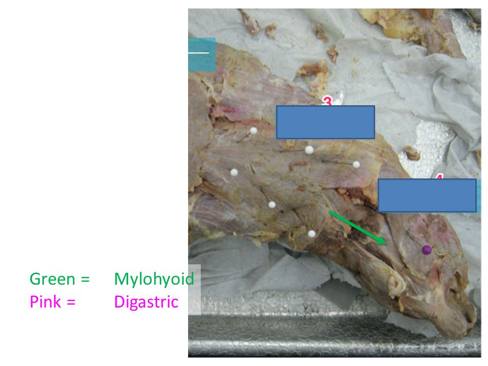 Green = Pink = Mylohyoid Digastric