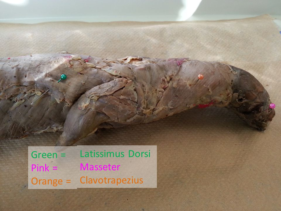 Green = Pink = Orange = Latissimus Dorsi Masseter Clavotrapezius