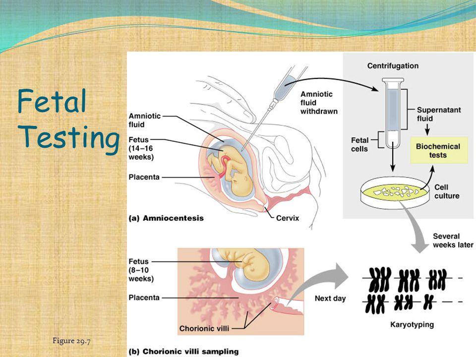 Fetal Testing Figure 29.7