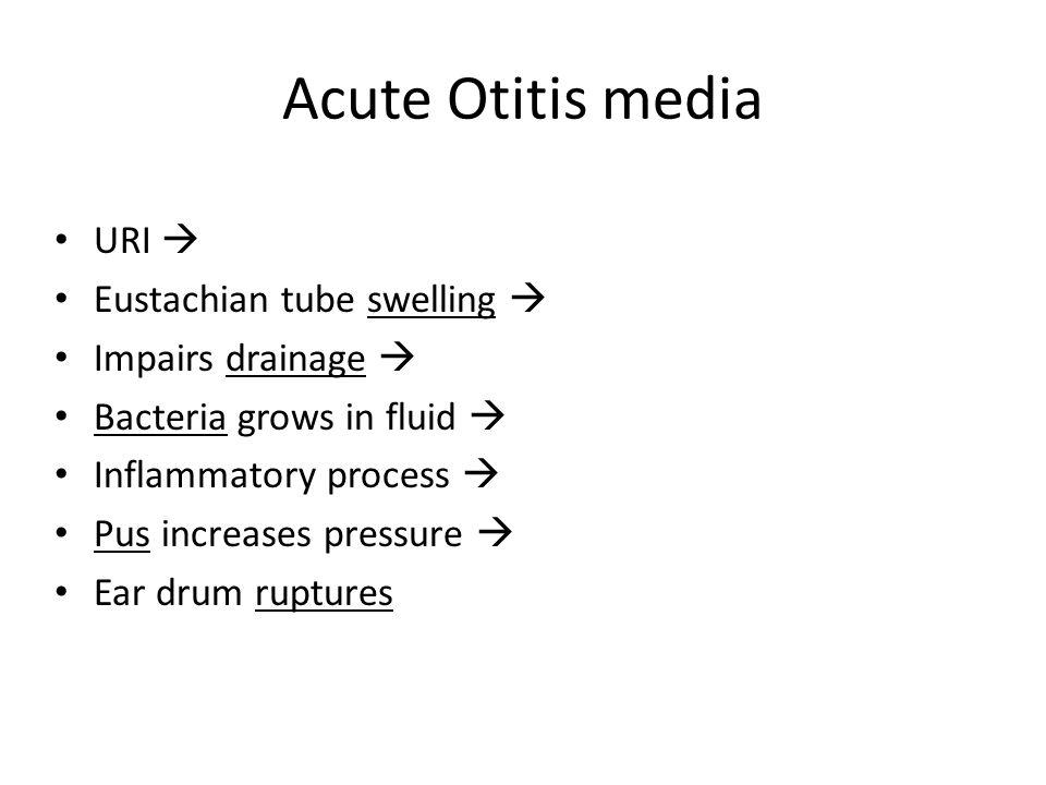 Acute Otitis media URI  Eustachian tube swelling  Impairs drainage 