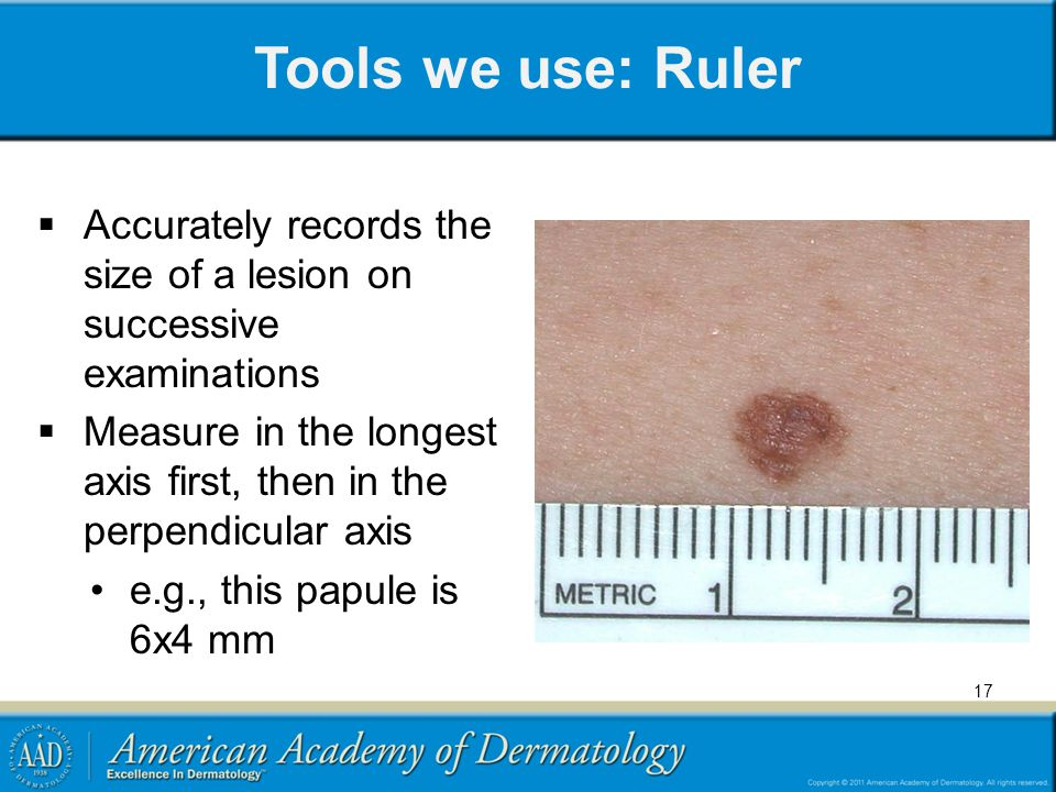 Tools we use: Ruler Accurately records the size of a lesion on successive examinations.
