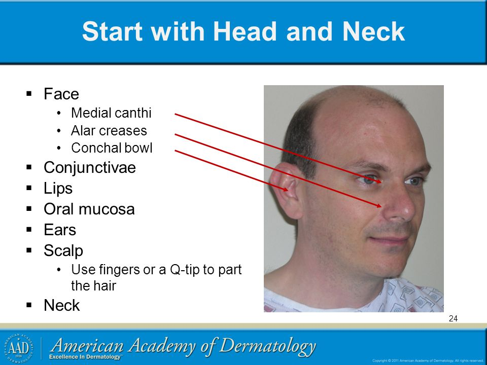 Start with Head and Neck