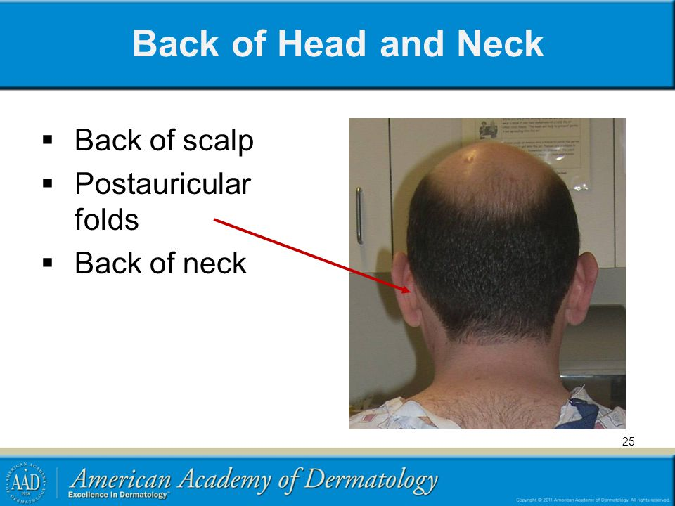 Back of Head and Neck Back of scalp Postauricular folds Back of neck