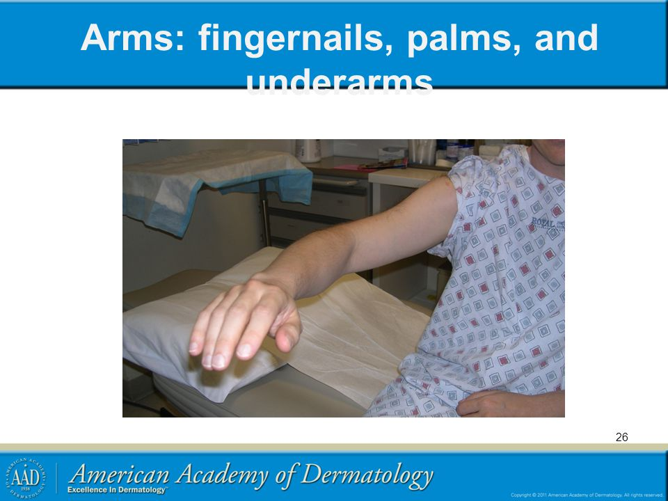 Arms: fingernails, palms, and underarms