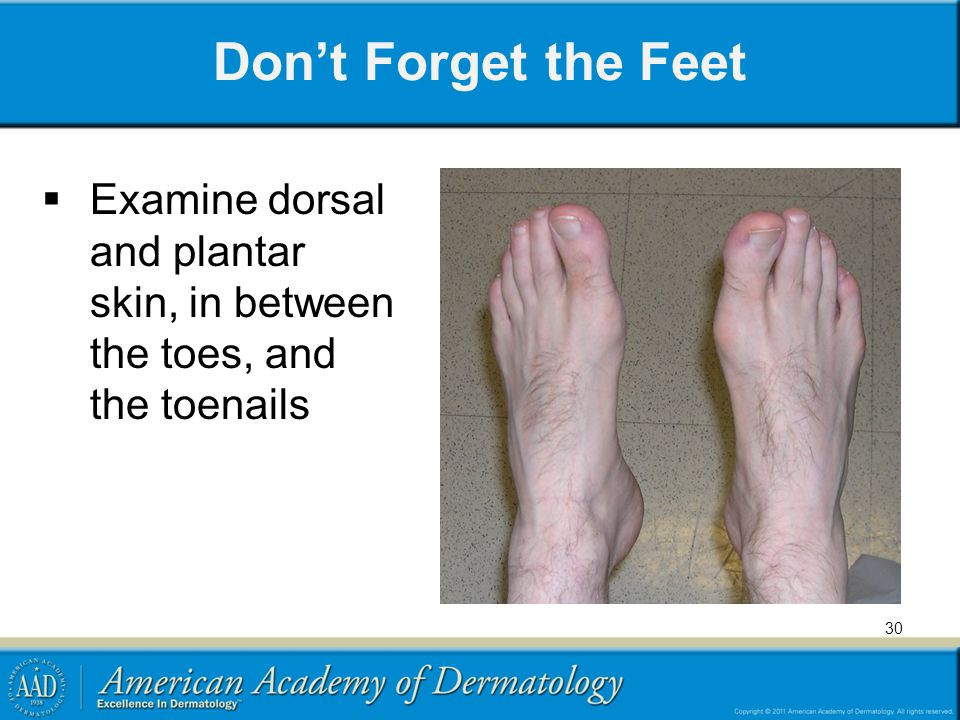 Don't Forget the Feet Examine dorsal and plantar skin, in between the toes, and the toenails