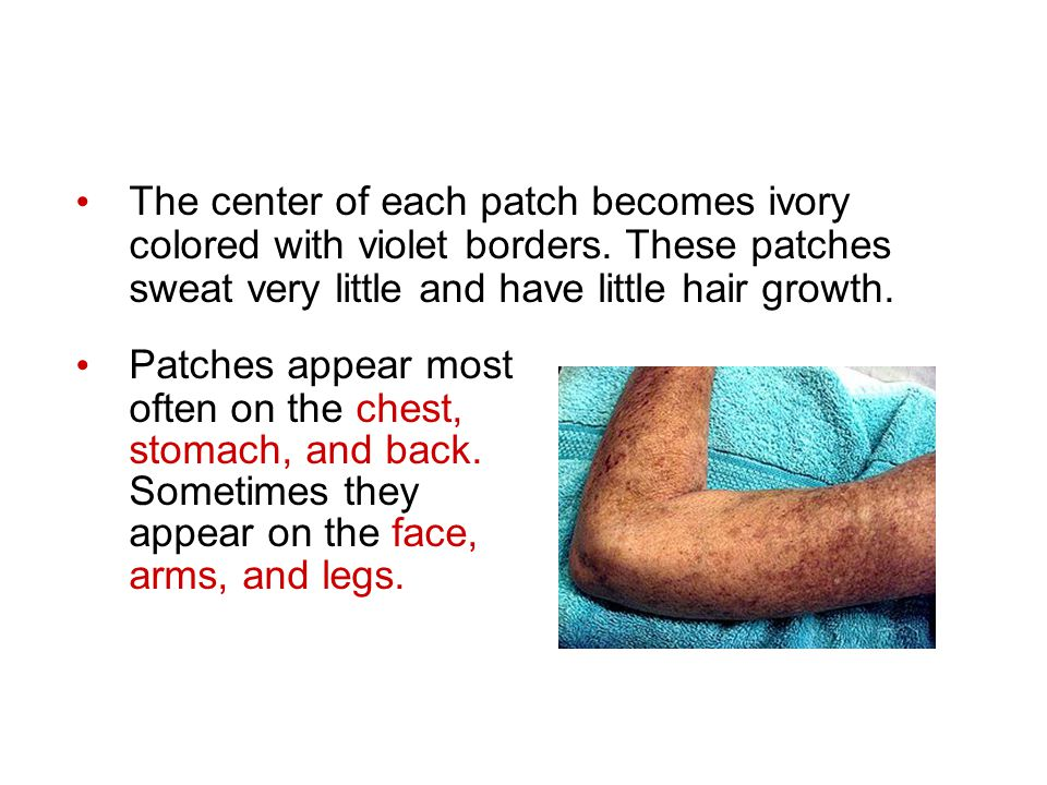 The center of each patch becomes ivory colored with violet borders