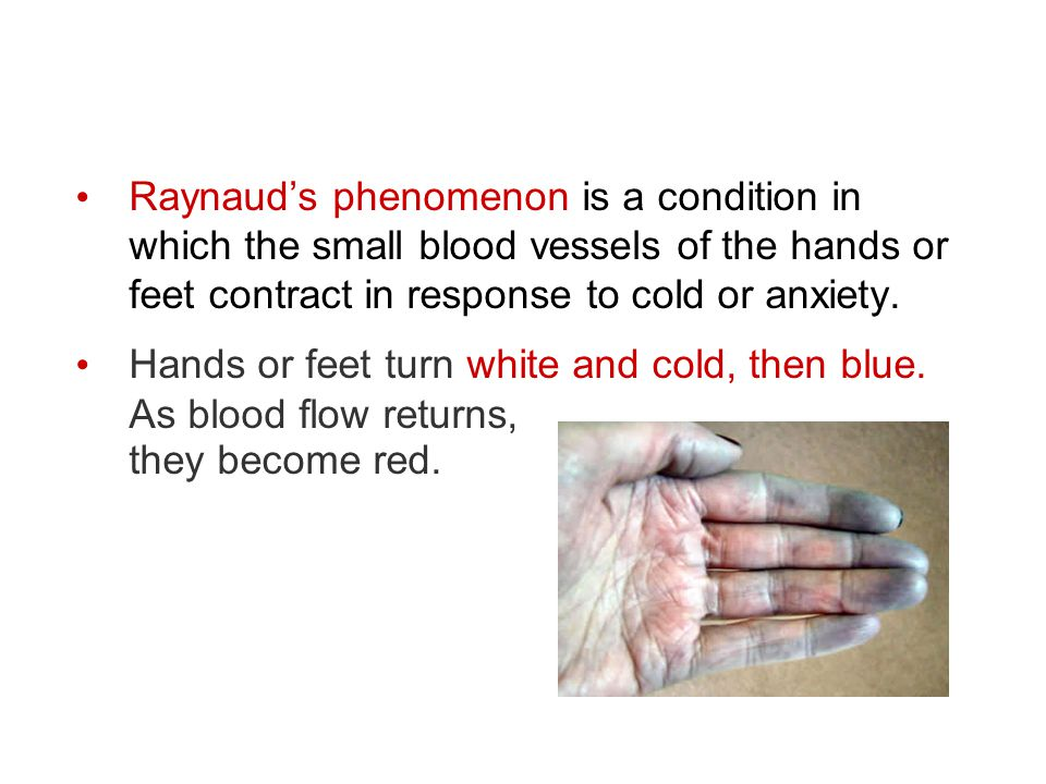 Raynaud's phenomenon is a condition in which the small blood vessels of the hands or feet contract in response to cold or anxiety.