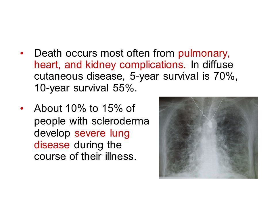 Death occurs most often from pulmonary, heart, and kidney complications. In diffuse cutaneous disease, 5-year survival is 70%,