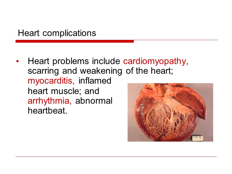 Heart complications Heart problems include cardiomyopathy, scarring and weakening of the heart; myocarditis, inflamed.