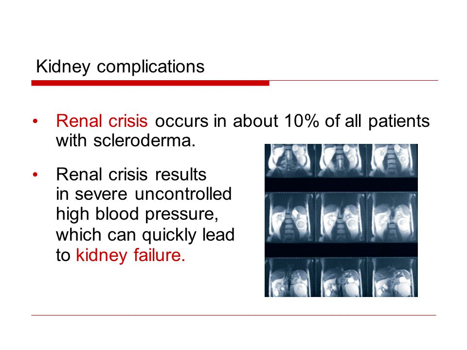 Kidney complications Renal crisis occurs in about 10% of all patients with scleroderma. Renal crisis results.