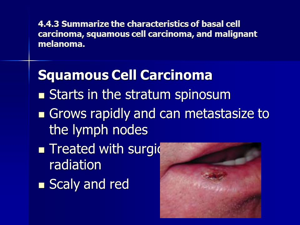 Squamous Cell Carcinoma Starts in the stratum spinosum