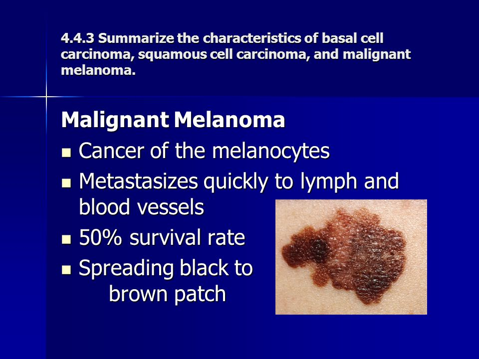 Cancer of the melanocytes