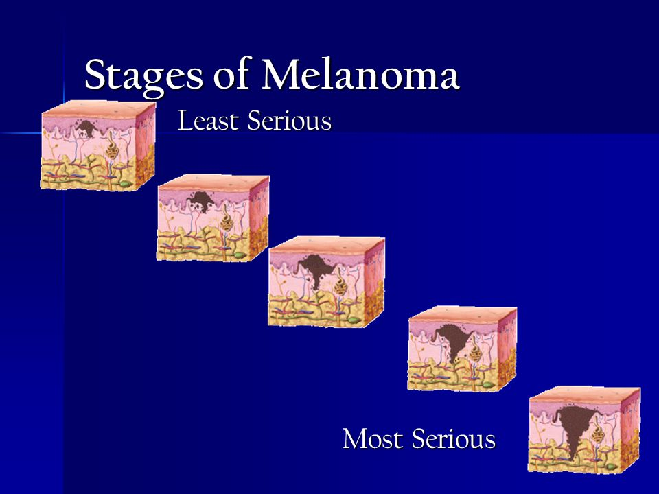 Stages of Melanoma Least Serious Most Serious