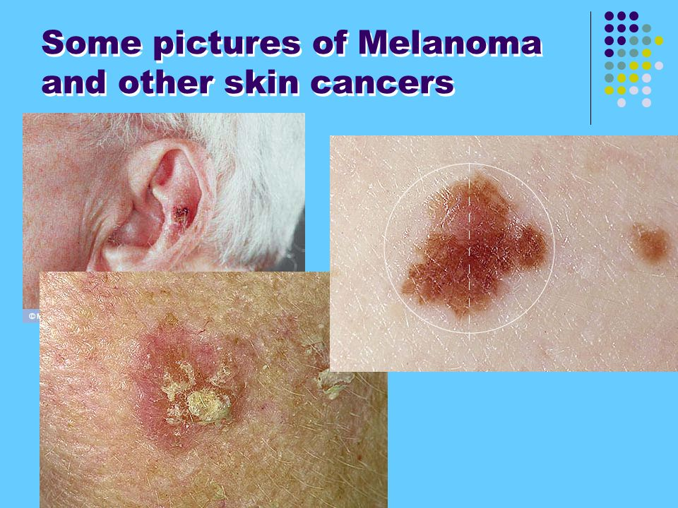 Some pictures of Melanoma and other skin cancers