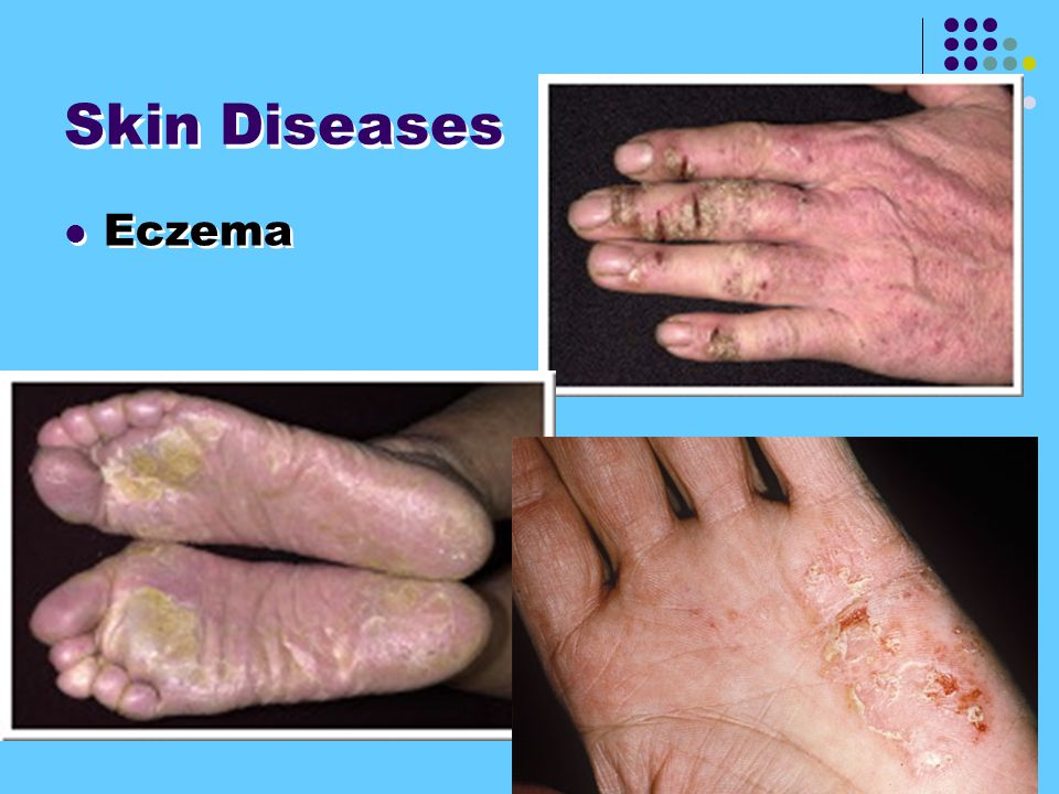 Skin Diseases Eczema