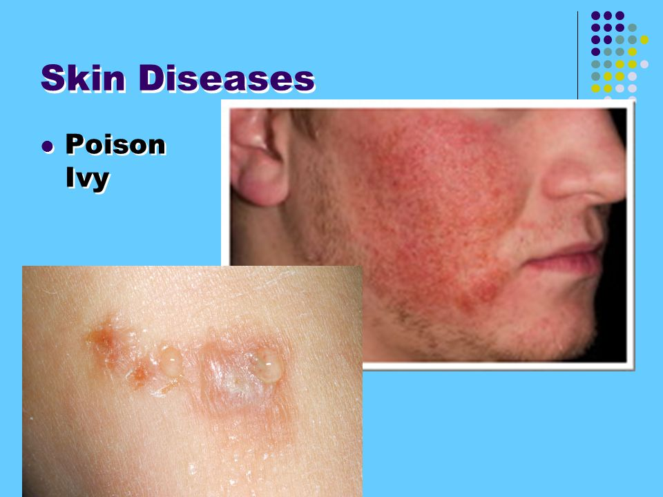 Skin Diseases Poison Ivy