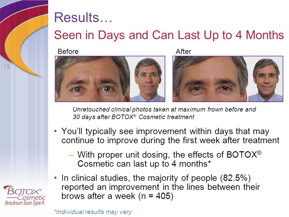 Results… Seen in Days and Can Last Up to 4 Months