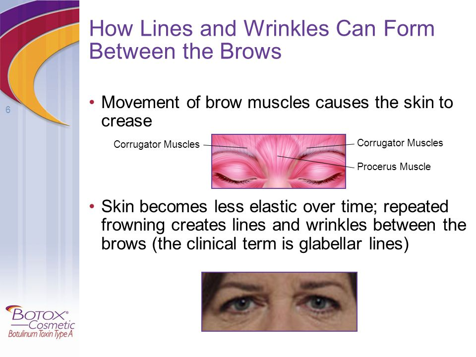 How Lines and Wrinkles Can Form Between the Brows
