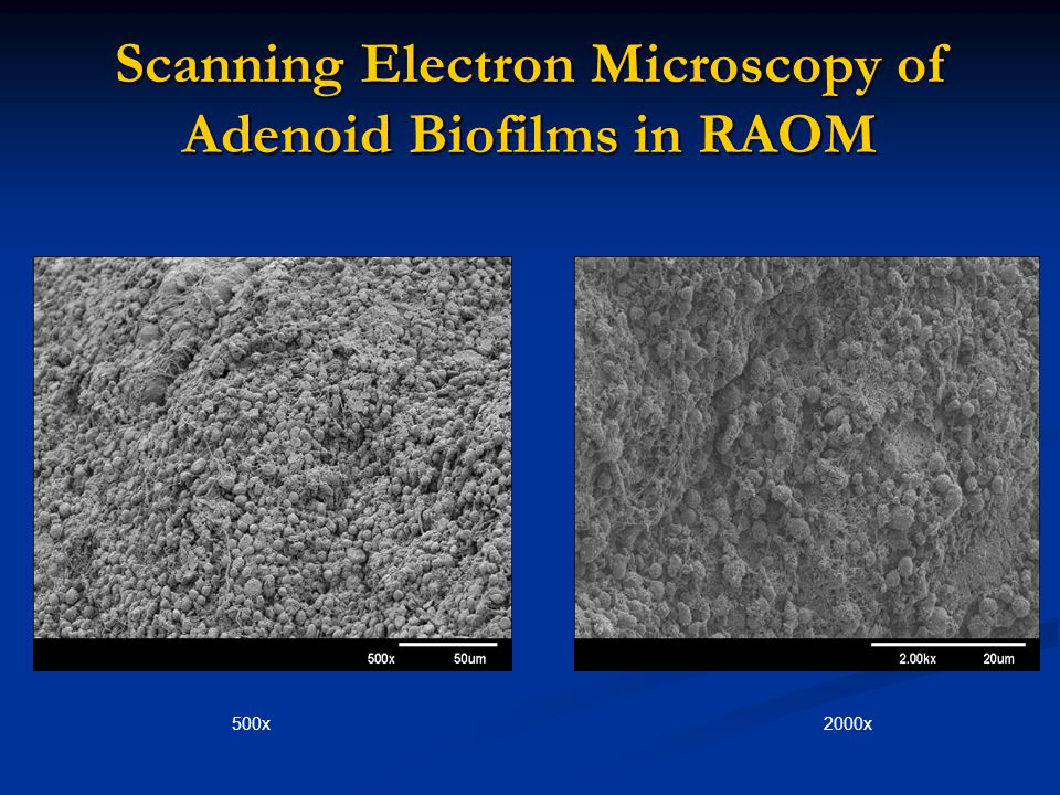 Scanning Electron Microscopy of Adenoid Biofilms in RAOM