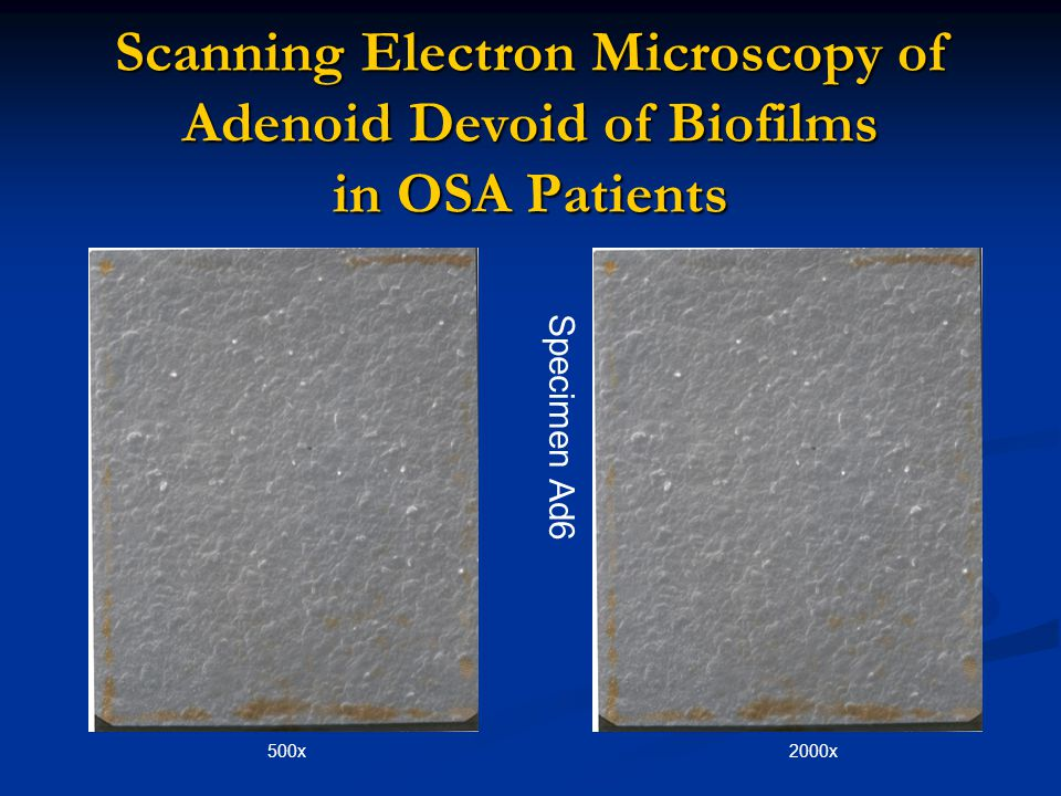 Scanning Electron Microscopy of Adenoid Devoid of Biofilms in OSA Patients
