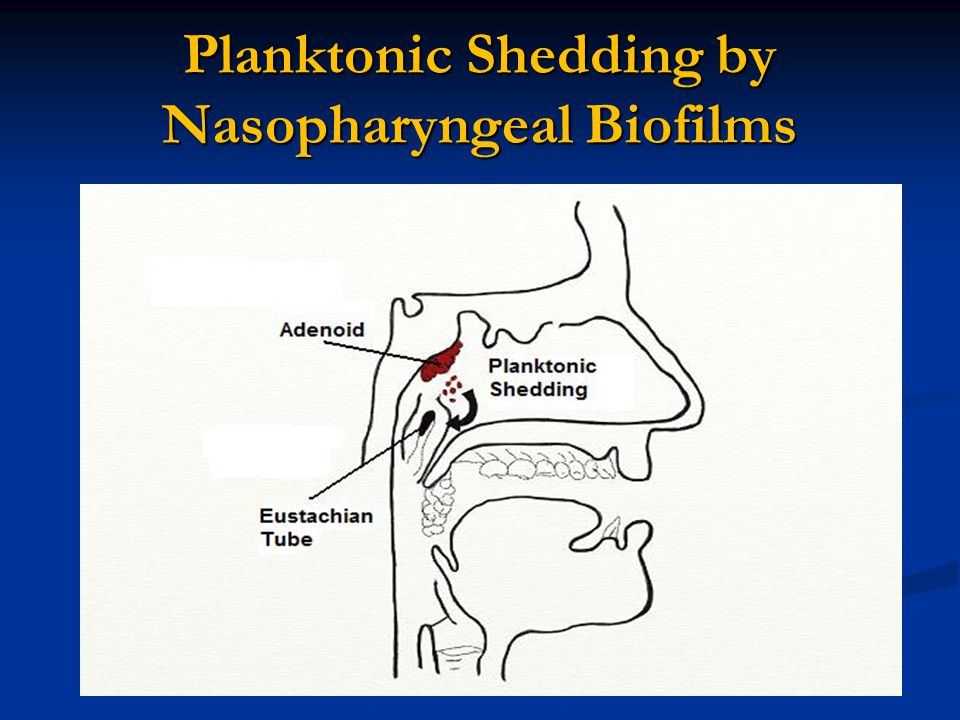 Planktonic Shedding by Nasopharyngeal Biofilms