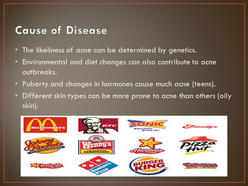 Cause of Disease The likeliness of acne can be determined by genetics.
