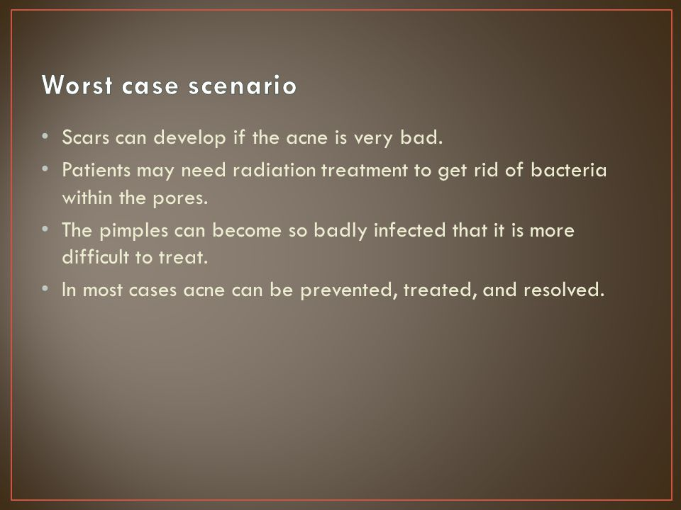 Worst case scenario Scars can develop if the acne is very bad.