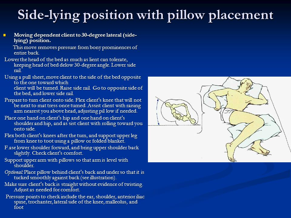 Side-lying position with pillow placement