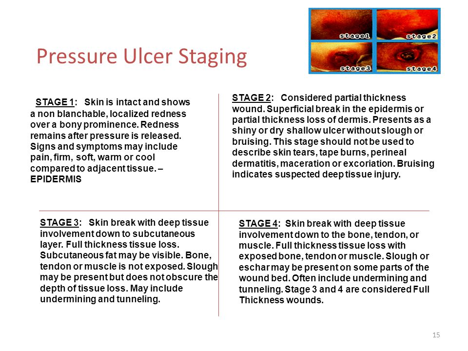 Pressure Ulcer Staging