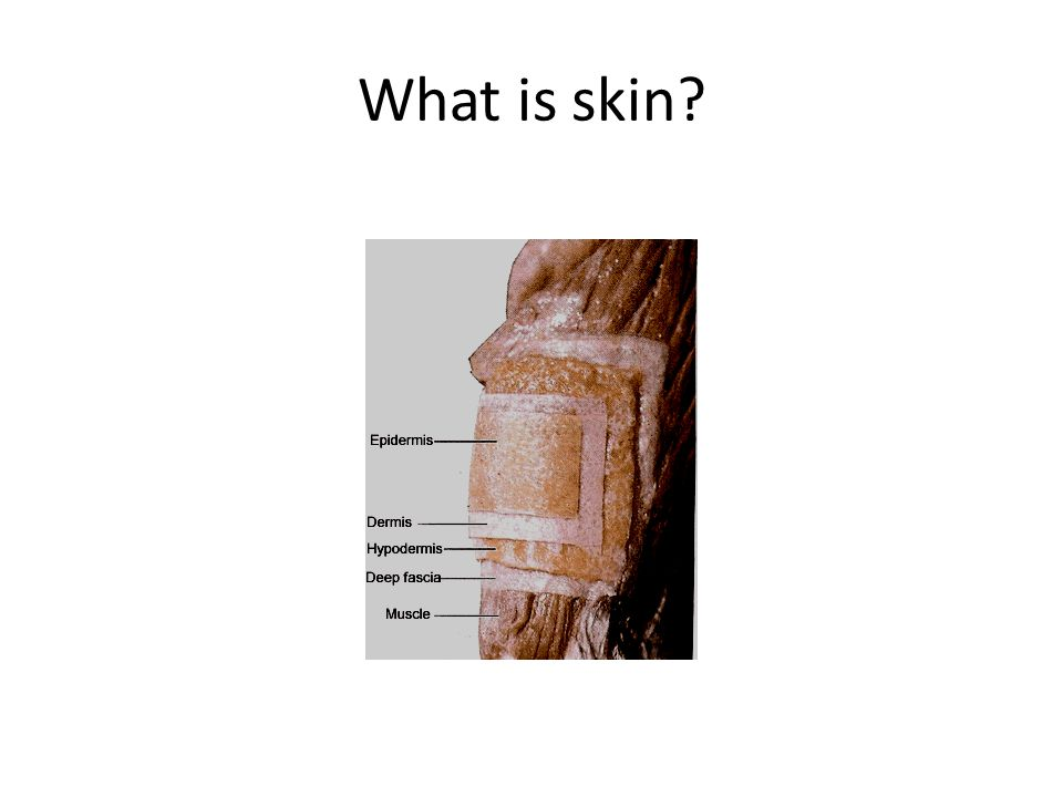 What is skin