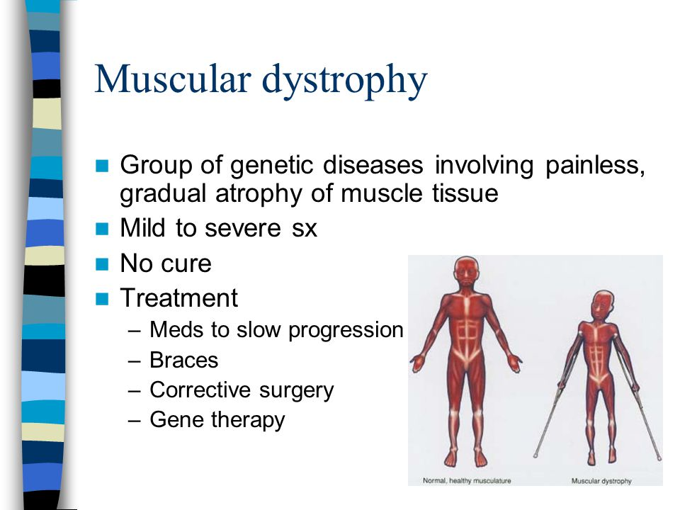 Muscular dystrophy Group of genetic diseases involving painless, gradual atrophy of muscle tissue. Mild to severe sx.