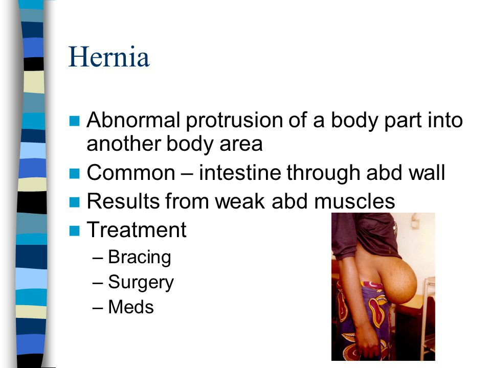 Hernia Abnormal protrusion of a body part into another body area