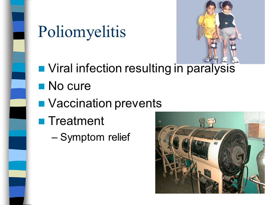 Poliomyelitis Viral infection resulting in paralysis No cure