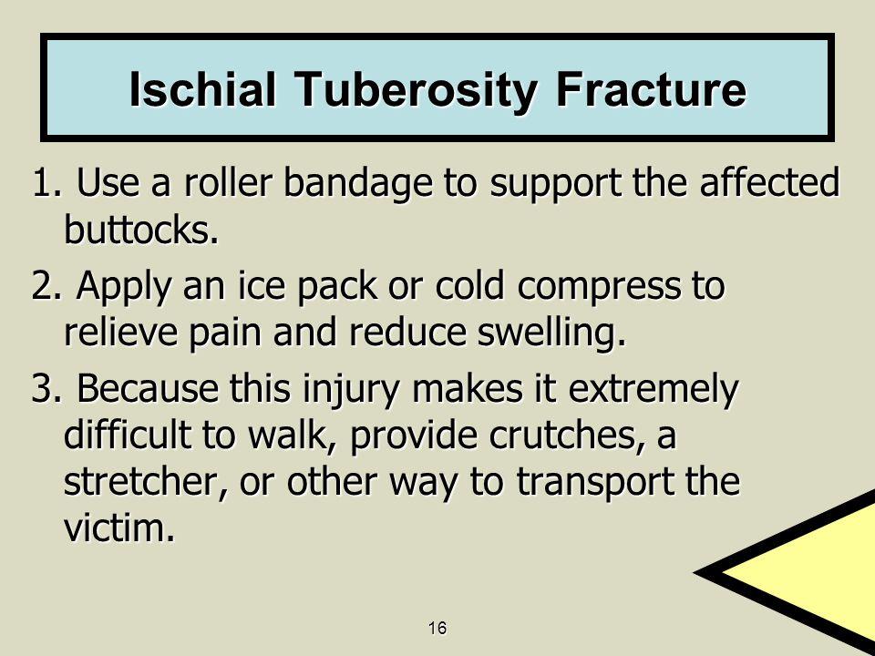 Ischial Tuberosity Fracture