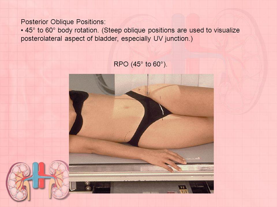 Posterior Oblique Positions: