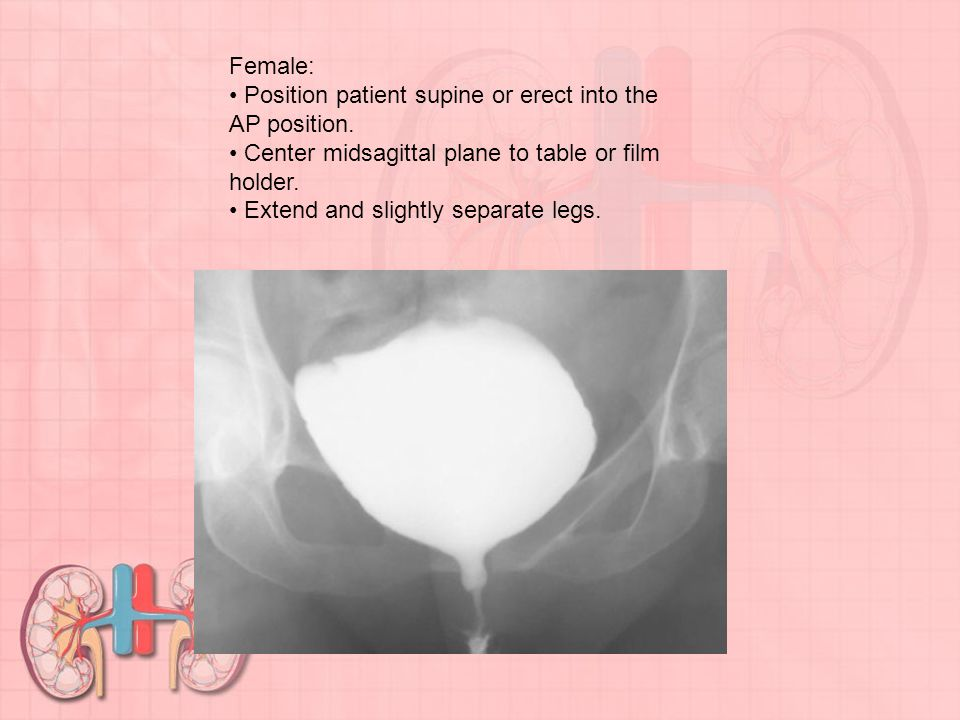 Female: • Position patient supine or erect into the AP position. • Center midsagittal plane to table or film holder.