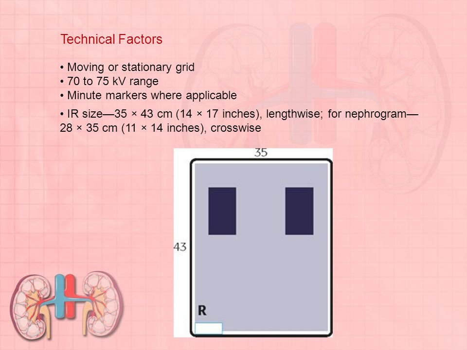 Technical Factors • Moving or stationary grid • 70 to 75 kV range