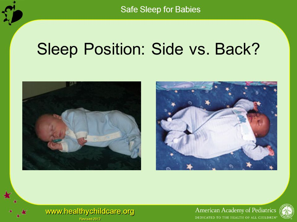 Sleep Position: Side vs. Back