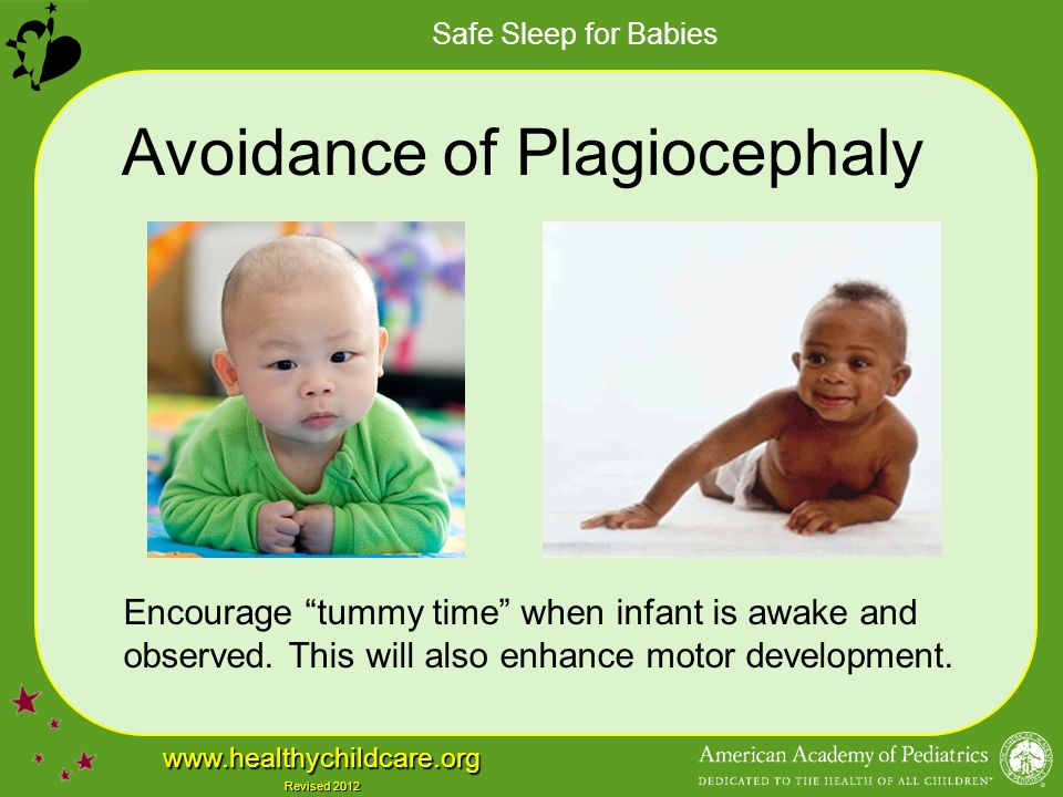 Avoidance of Plagiocephaly