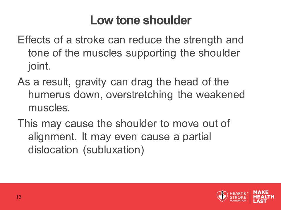 Low tone shoulder