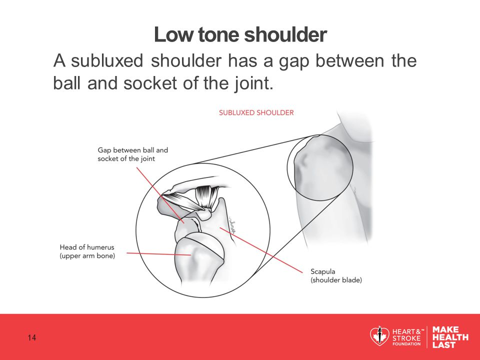 Low tone shoulder A subluxed shoulder has a gap between the ball and socket of the joint. 14