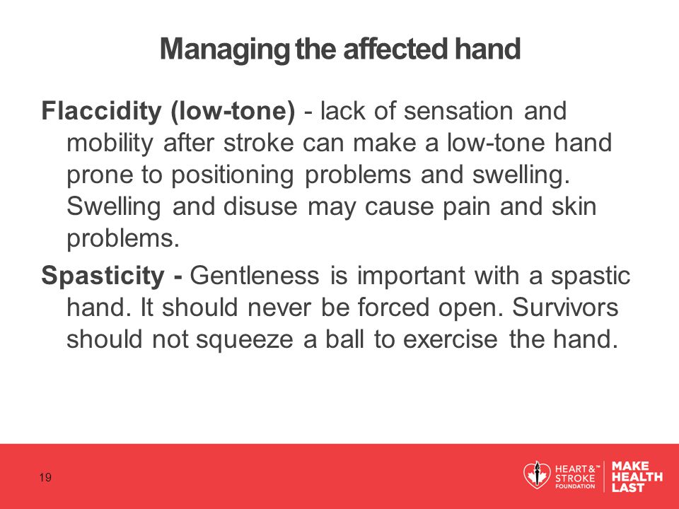 Managing the affected hand