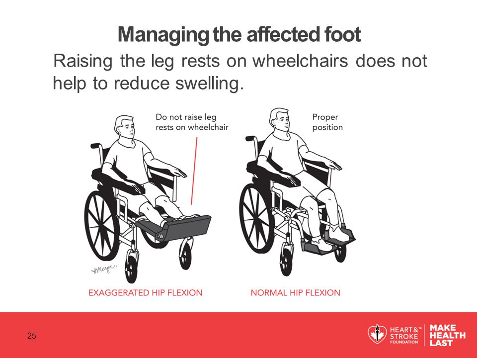 Managing the affected foot