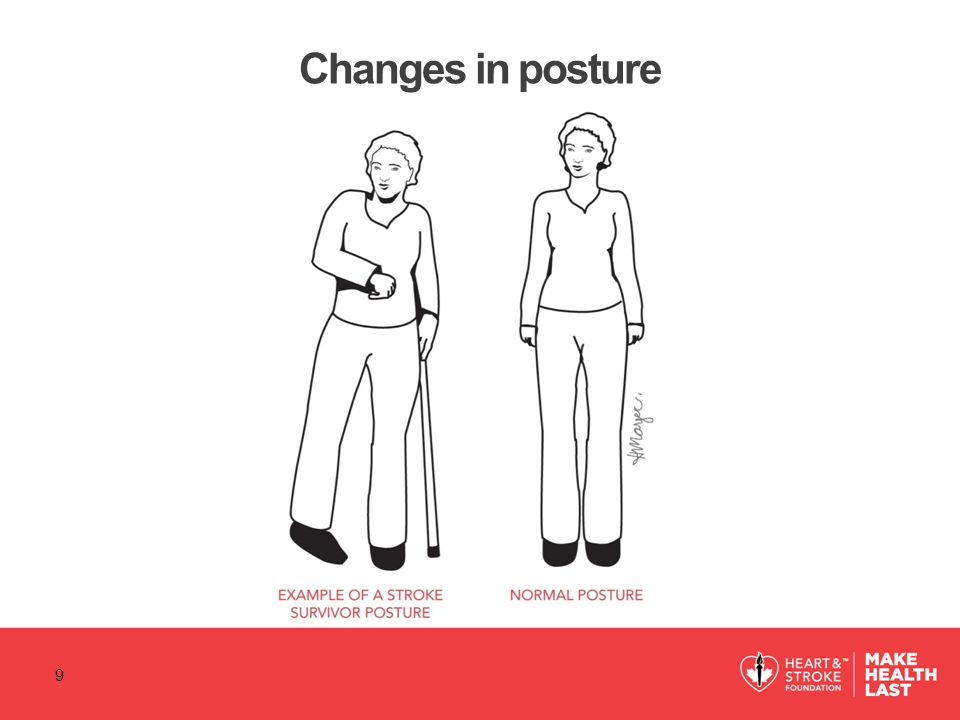 Changes in posture 9