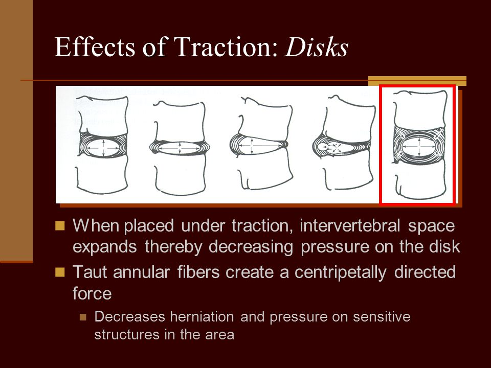 Effects of Traction: Disks