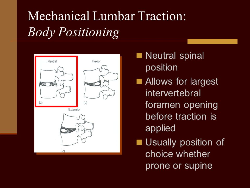 Mechanical Lumbar Traction: Body Positioning