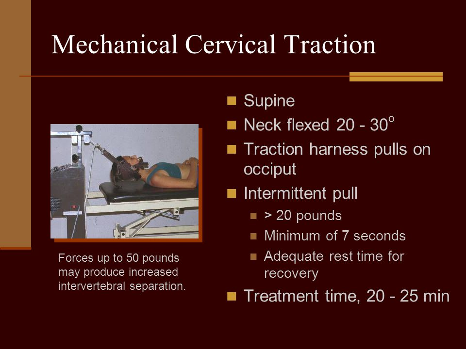 Mechanical Cervical Traction