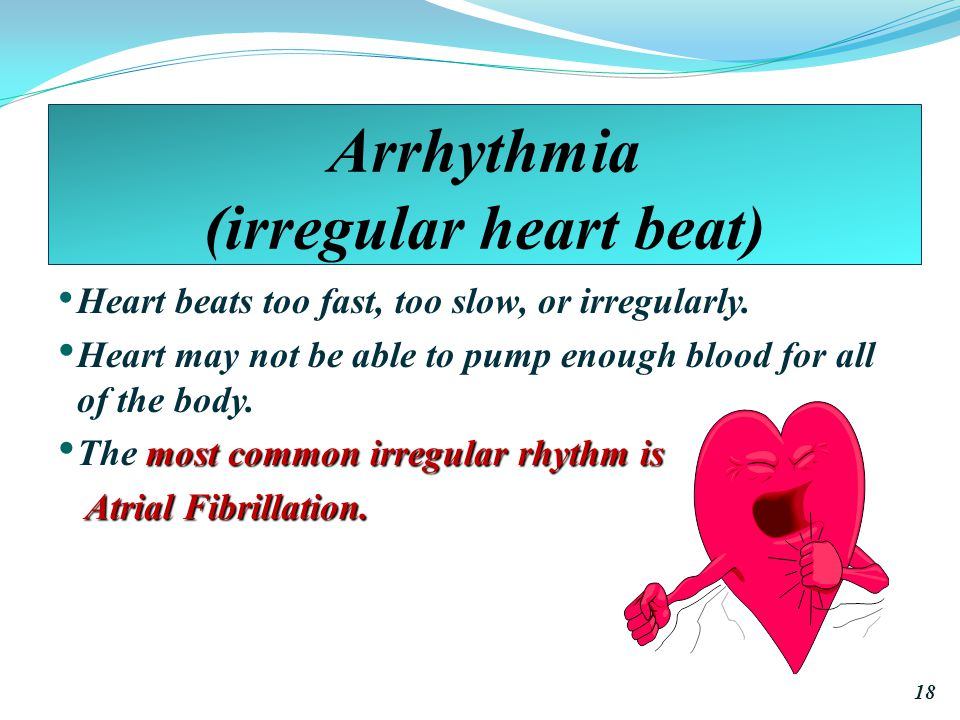 Arrhythmia (irregular heart beat)